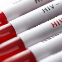 A luta contra a AIDS e sua repercussão no Direito do Trabalho.