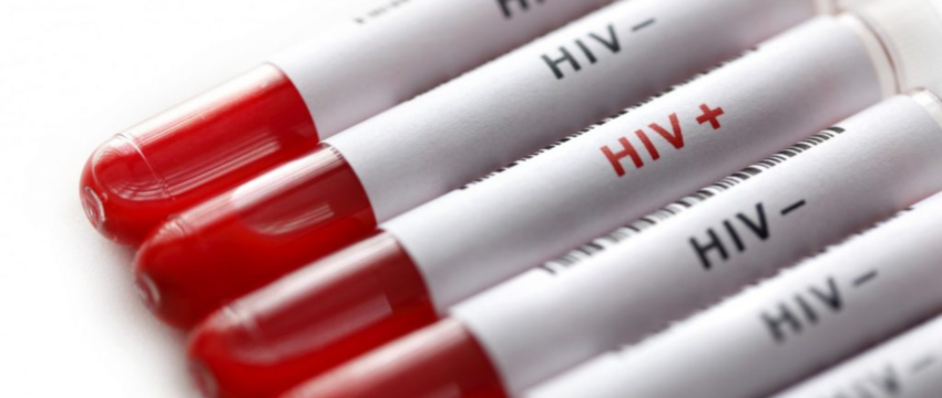 Lara FOTO SITE Aids